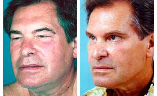 Case-2-Eyelid-surgery-2-new