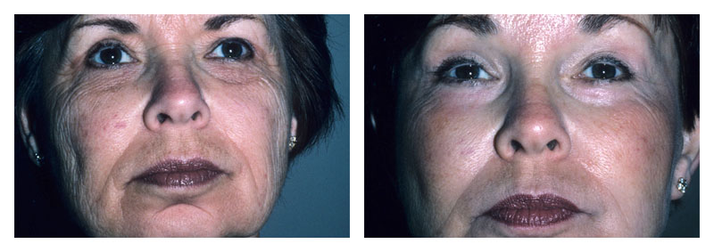 Case 2 – Facelift & Neck Surgery