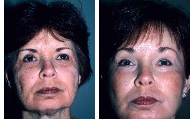 Case-2-Facelift_Neck-Surgery-1-new