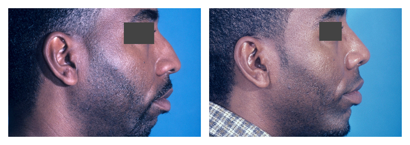 Case 2 – Chin Implant Augmentation