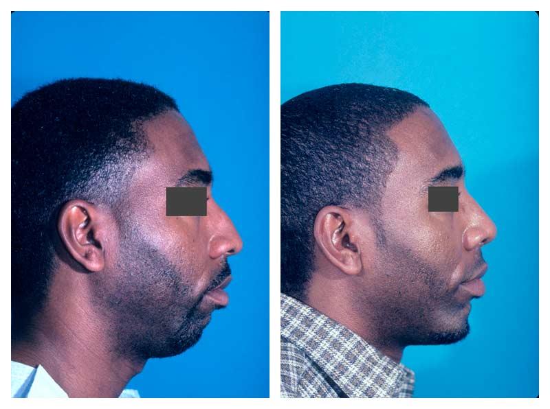 Case-2-Facial-Contouring-new