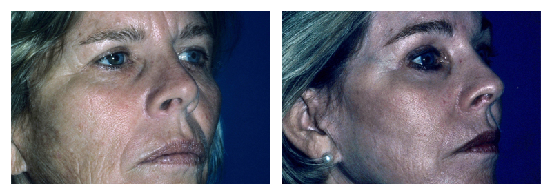 Case 2 – Laser Facial Skin Resurfacing
