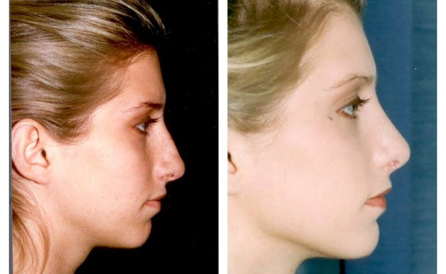 Case-2-Nose-Surgery-1-new