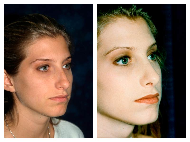 Case-2-Nose-Surgery-2-new