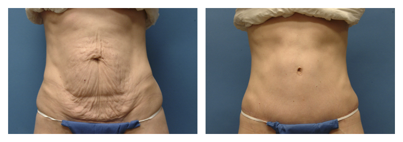 Case 2 – Tummy Tuck