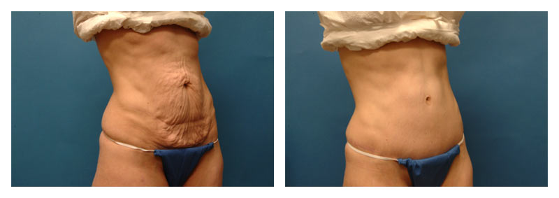 Case-2-Tummy-Tuck-2-new2
