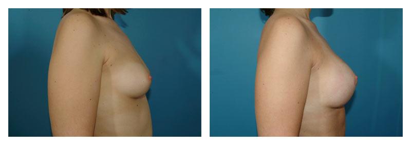 Case-3-Breast-Augmentation-2-new