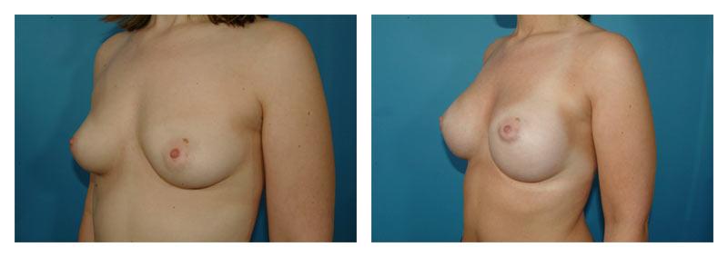 Case-3-Breast-Augmentation-3-new