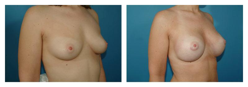 Case-3-Breast-Augmentation-4-new