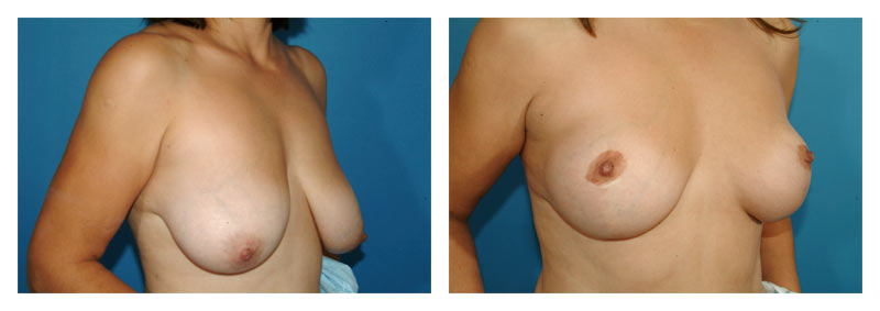 Case-3-Breast-Lift-2-new