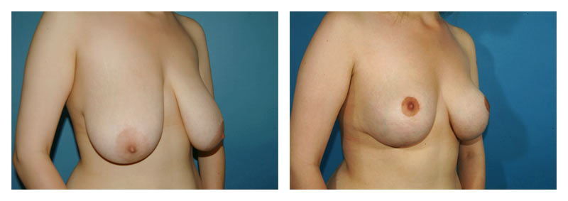 Case-3-Breast-Reduction-2-new