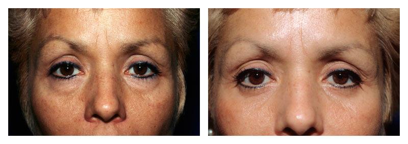 Case 3 – Eyelid surgery