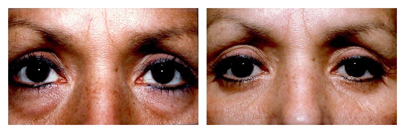 Case-3-Eyelid-surgery-2-new