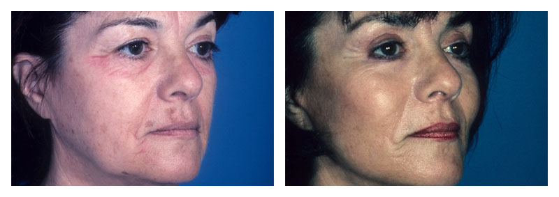 Case 3 – Facelift & Neck Surgery