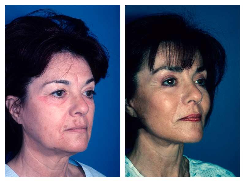 Case-3-Facelift_Neck-Surgery-1-new