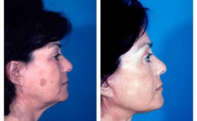 Case-3-Facelift_Neck-Surgery-2-new