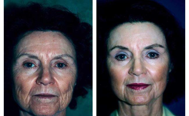 Case-3-Laser-Facial-Surgery-new