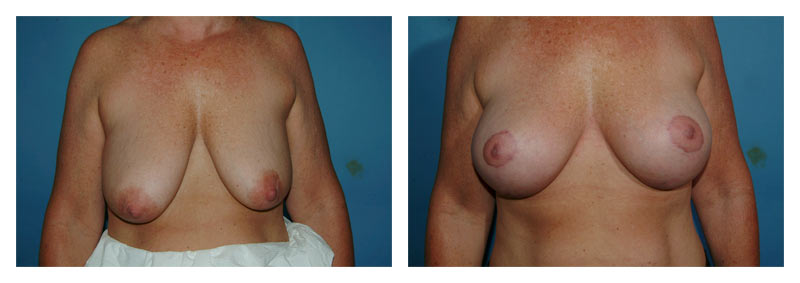 Case 4 – Breast Aug with lift
