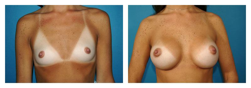 Case 4 – Breast Augmentation