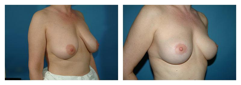 Case-4-Breast-Lift-1-new