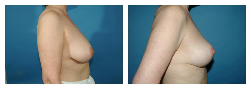Case-4-Breast-Lift-2-new