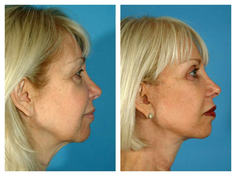 Case-4---Facelift-_-Neck-Surgery---3-new