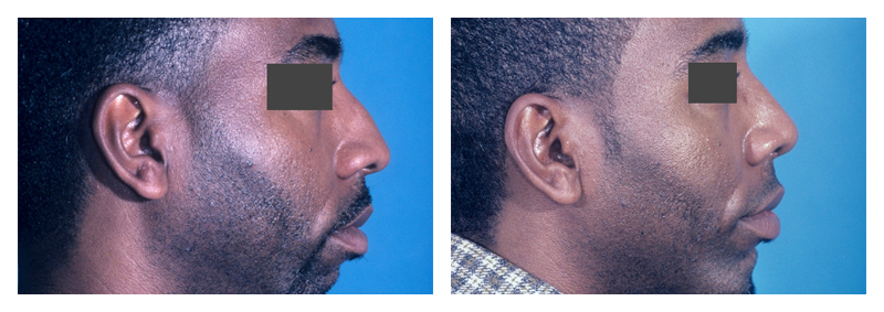 Case 4 – Nose Surgery