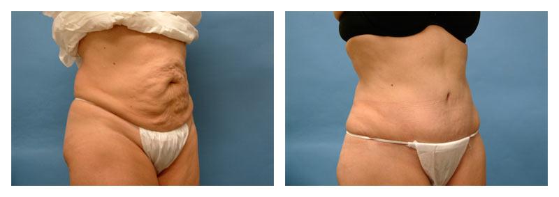 Case-4-Tummy-Tuck-2-new
