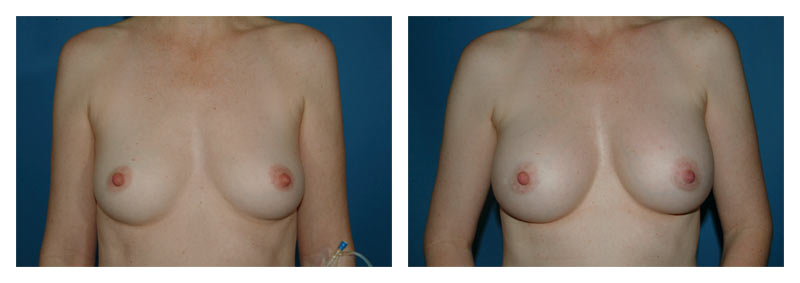 Case 5 – Breast Augmentation