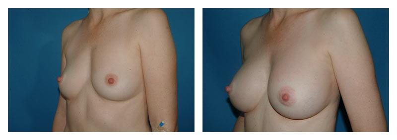 Case-5-Breast-Augmentation-2-new
