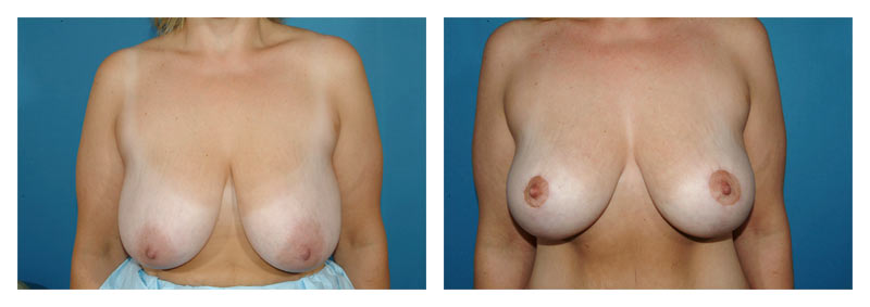 Case 5 – Breast Lift without Implants