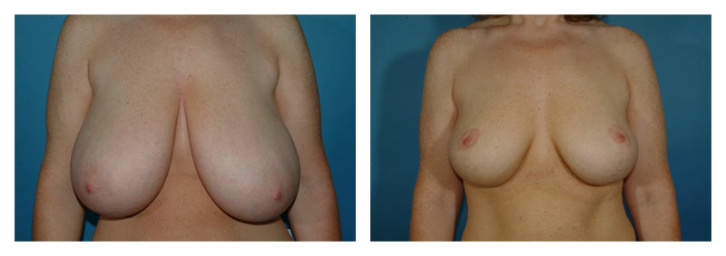 Case 5 – Breast Reduction