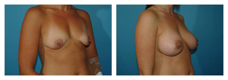Case-6-Breast-Augmentation-2-new