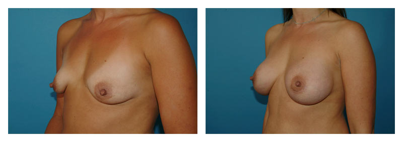 Case-6-Breast-Augmentation-3-new