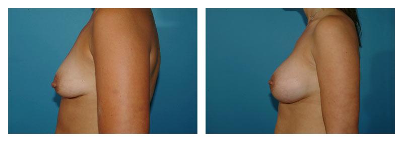 Case-6-Breast-Augmentation-4-new
