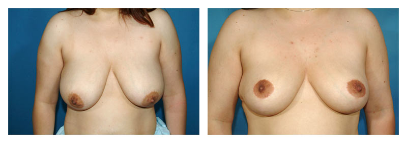 Case 6 – Breast Reduction