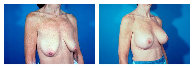 Patient-A-view-2-lift-implants-new