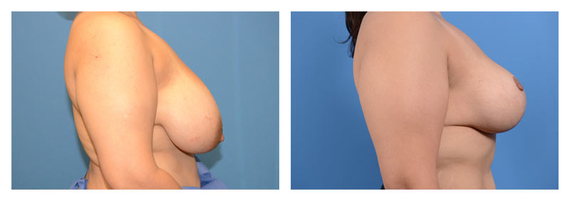 Case 10 – Breast Reduction2