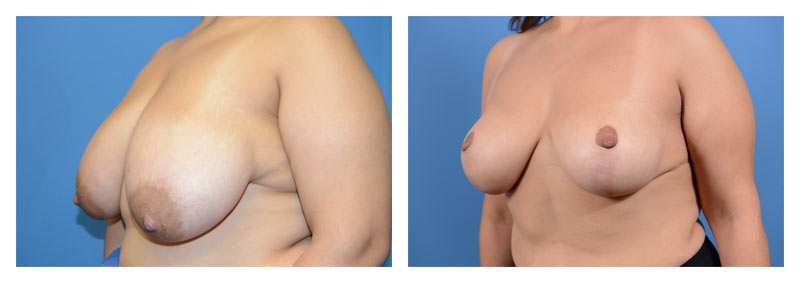 Case 10 – Breast Reduction3