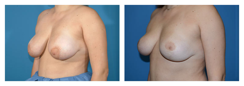 Case 11 – Breast Reduction3