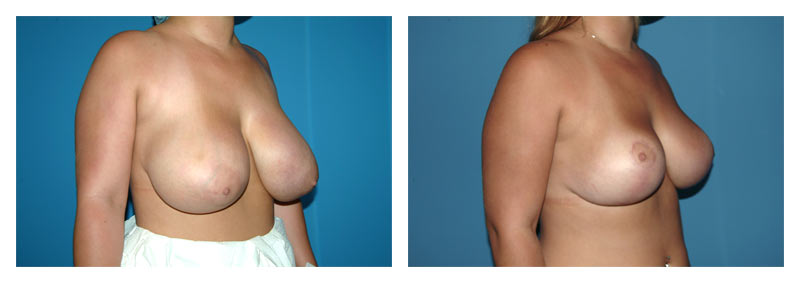 Case 12 – Breast Reduction3