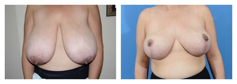 Case 11 – Breast Reduction