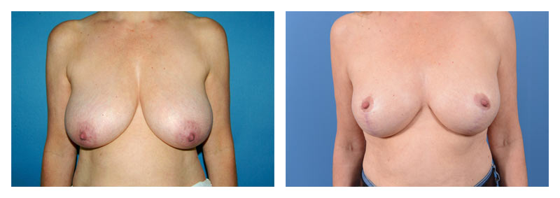 Case 13 – Breast Reduction