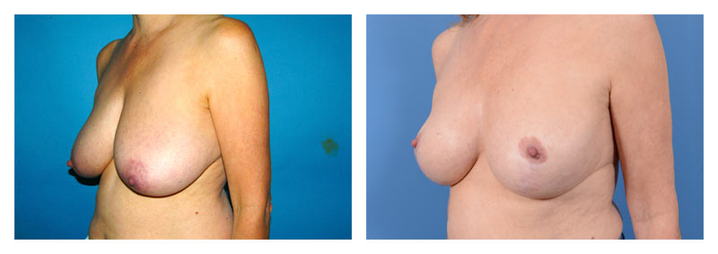 Case 15 – Breast Reduction2