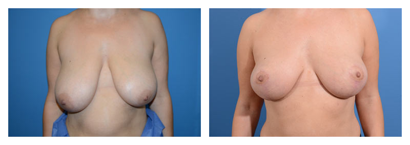 Case 7 – Breast Reduction