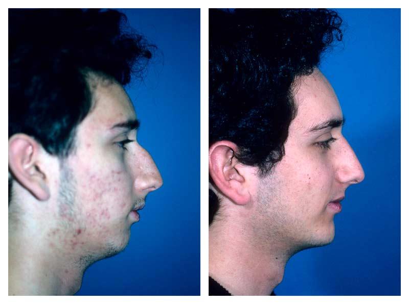 Facial Contouring Gallery