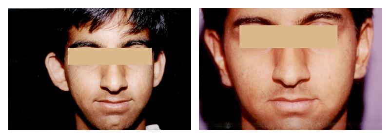 Case-2-Ear-Surgery_preview
