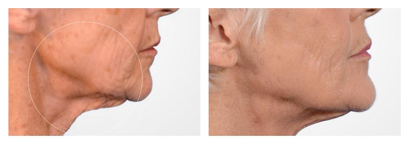 Case-6-Face-Tite-new