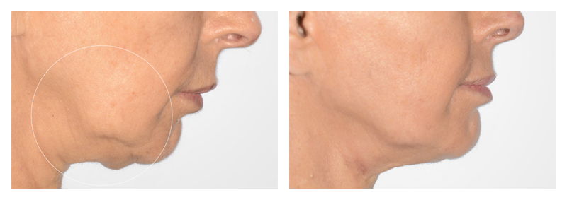 Case-7-Face-Tite-new
