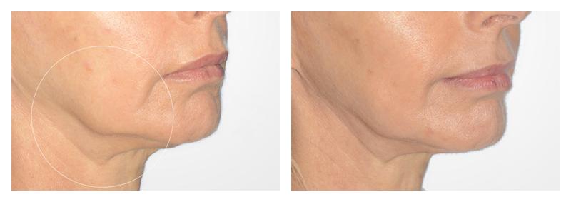 Case-8-Face-Tite-new